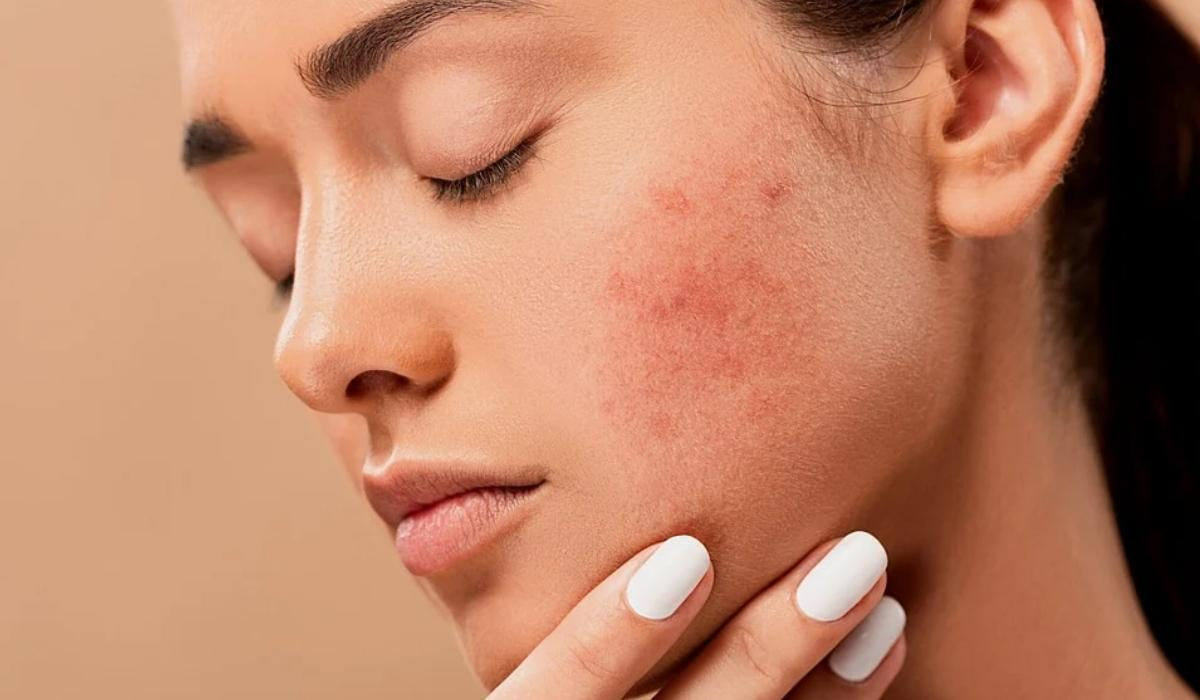 Let's Be Clear About Acne Treatment